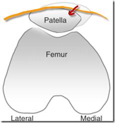 patellofemoral tape